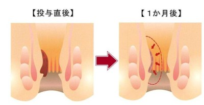 痔の日帰り手術「ジオン(ALTA)注射療法」
